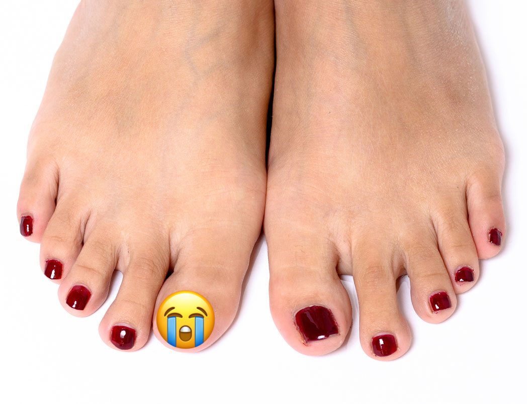 So You Lost A Toenail It Happens