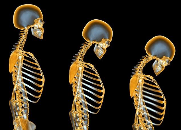 Runner's posture