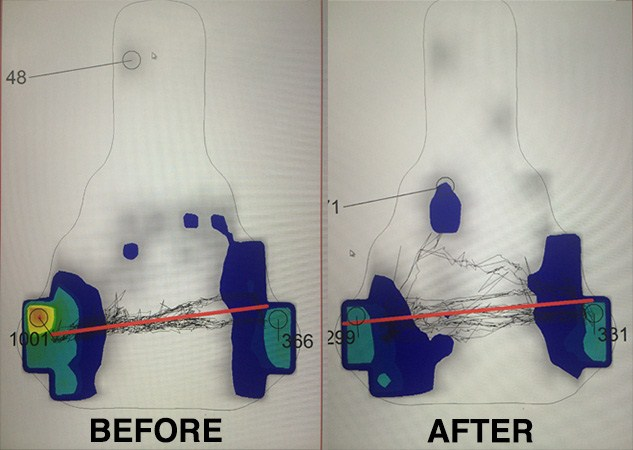 Pressure mapping at Cyclefit